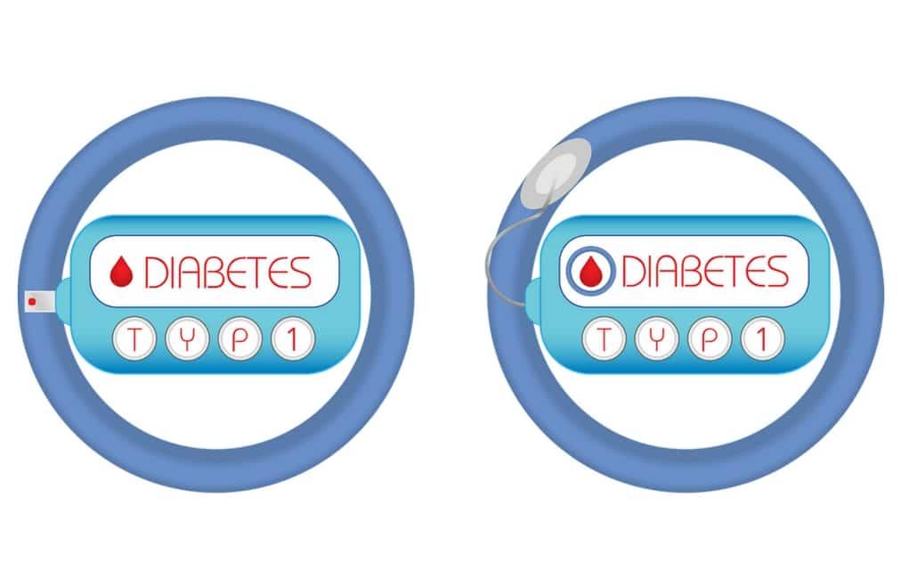 Der Diabetes Typ 1 wurde früher auch als Jugenddiabetes bezeichnet
