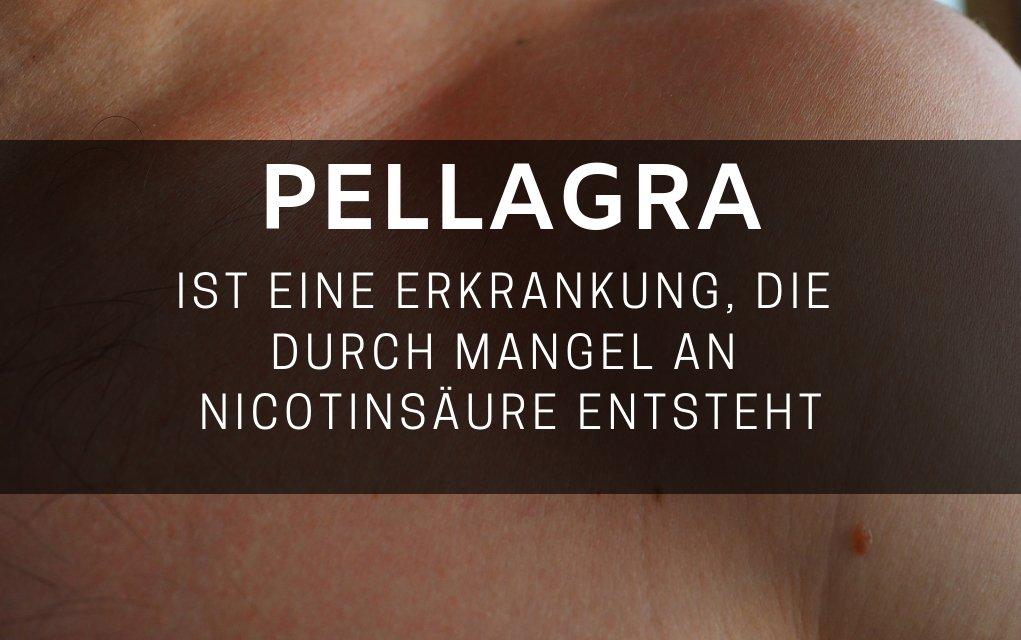 Pellagraist eine Erkrankung, die durch Mangel an Nicotinsäure